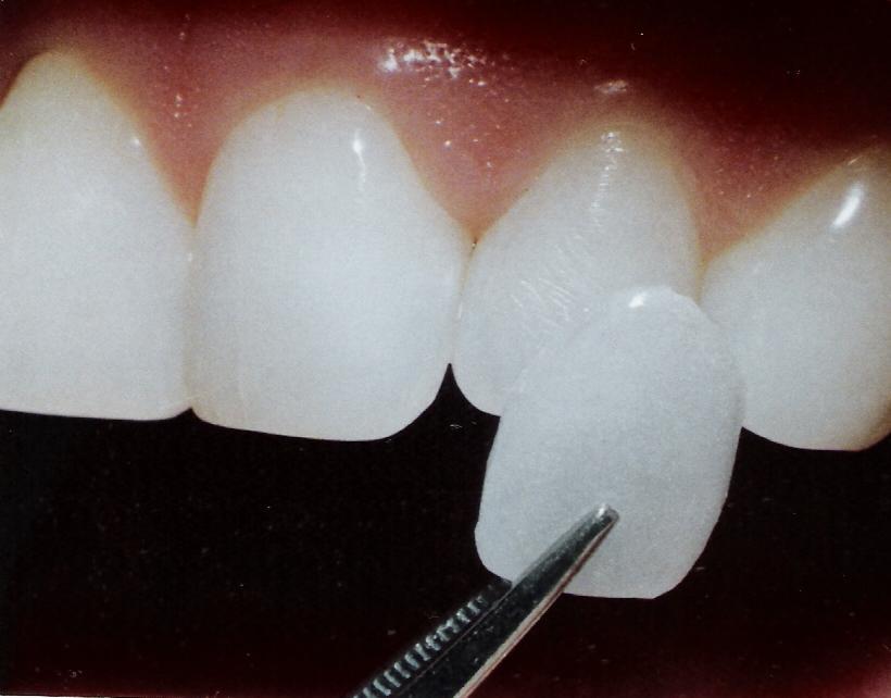 Las carillas dentales son estéticas, cómodas y mínimamente invasivas