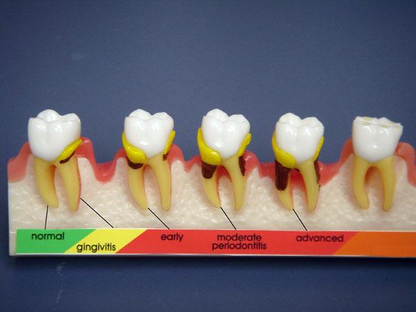 Controlar la enfermedad periodontal es de gran importancia en pacientes diabéticos