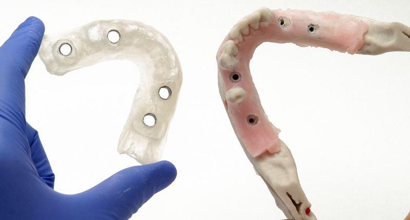 Una férula quirúrgica asegura la colocación de los implantes de forma predecible