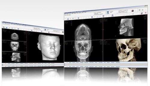 Nemoscan permite visualizar la cirugía de forma previa, asegurando una precisión total