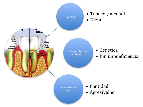 Factores predisponentes de la periodontitis