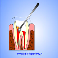Una pulpotomía supone retirar el nervio de la cámara de una pieza temporal o 'de leche'