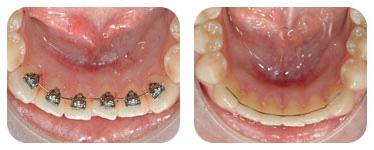 En algunos casos, los pacientes demandan máxima estética para pequeños movimientos dentarios