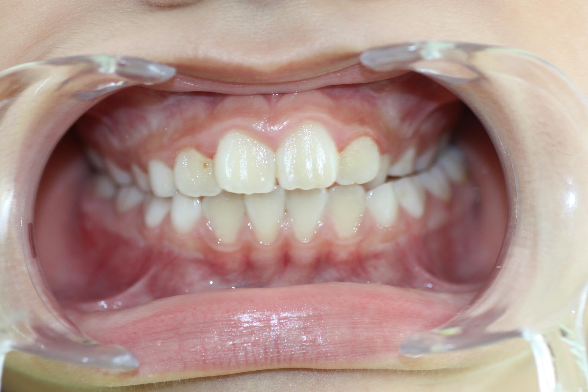 Esta paciente presenta una mordida cruzada en el lado izquierdo de su boca