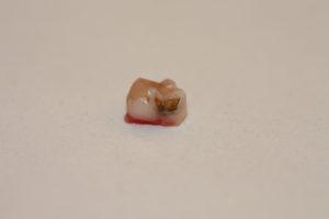 Un molar temporal exfoliado: podemos apreciar como tenía una caries
