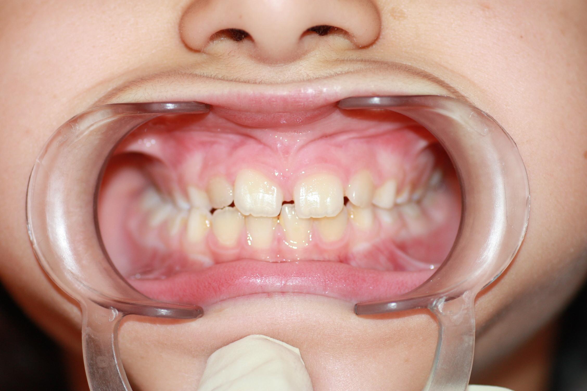 Obsérvese como en el lado izquierdo de la imagen los dientes superiores muerden 'por dentro' de los inferiores