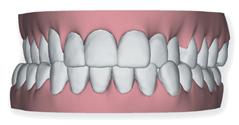 En una mordida cruzada los dientes inferiores ocluyen 'por fuera' de los superiores