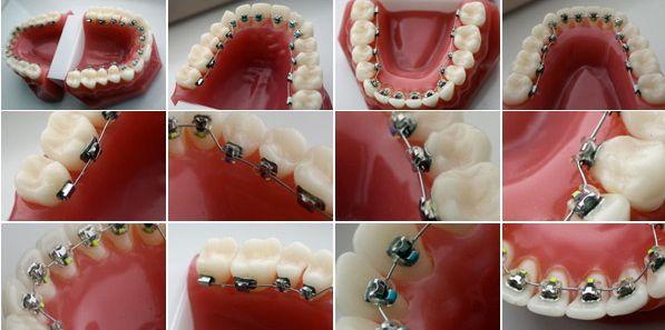 Los brackets se colocan estratégicamente en la cara interna de los dientes, de forma efectiva y discreta