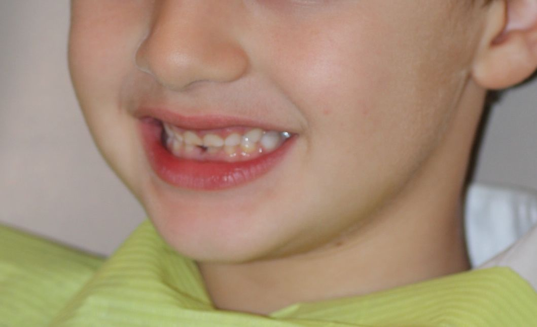 Los dientes en formación se hacen más resistentes con la aplicación periódica de flúor tópico
