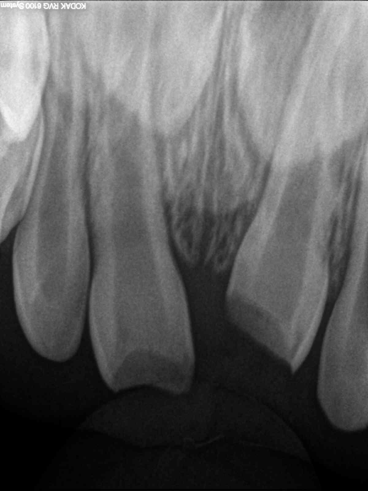 El odontopediatra realizará un diagnóstico apoyado con radiografías periapicales