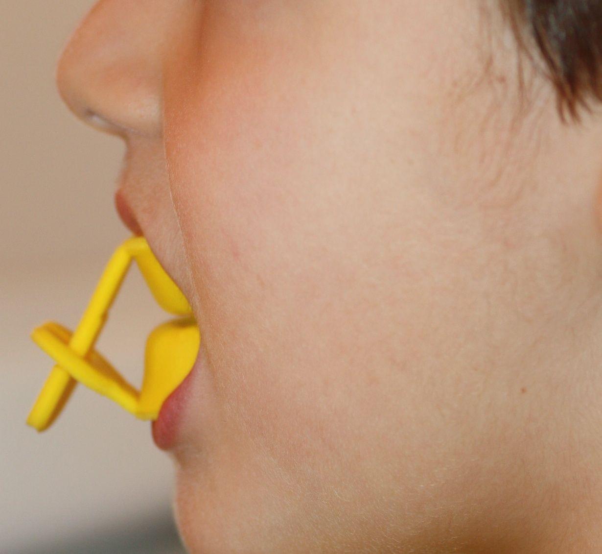 El odontopediatra de cada niño valorará su riesgo de caries y sus necesidades de fluoración