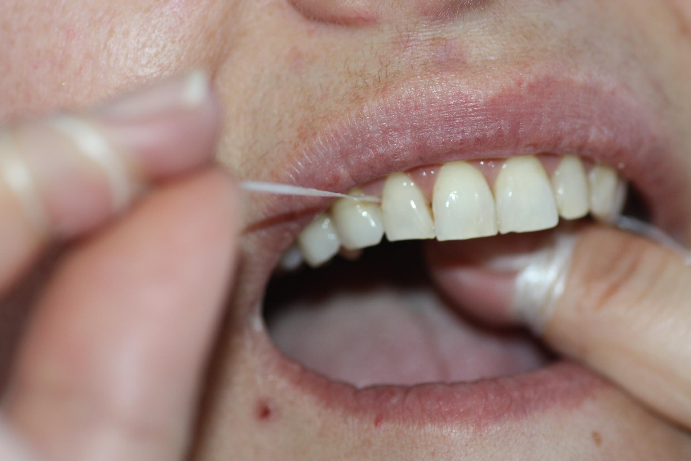 """""""Enrollado"""" en los dedos, el hilo dental se pasa entre los puntos de contacto de todos los dientes para eliminar restos de comida entre ellos"""