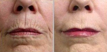 El efecto 'código de barras' perioral tratado con microfillers por un dentista ofrece un resultado agradable, natural y rejuvenecido
