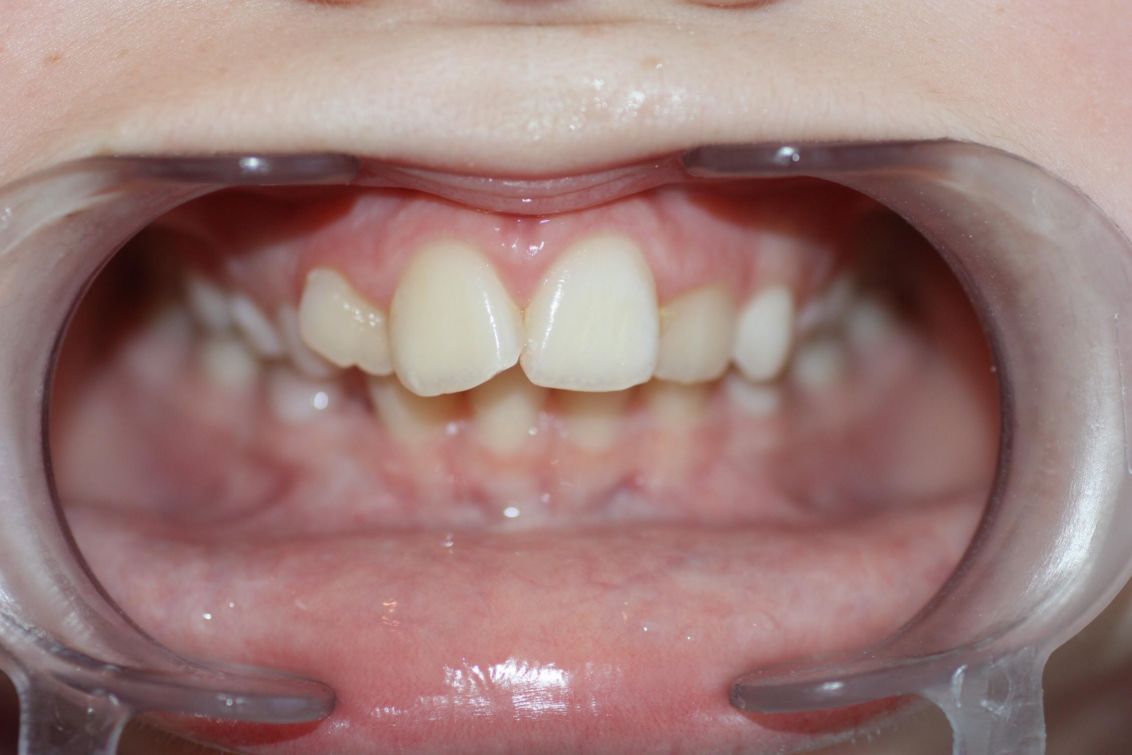 Sugerimos a los padres de nuestro paciente que el resultado estético, después del pulido, es aceptable, debido a que el diente está girado, pero, aún así, deciden optar por reconstruir la zona perdida.
