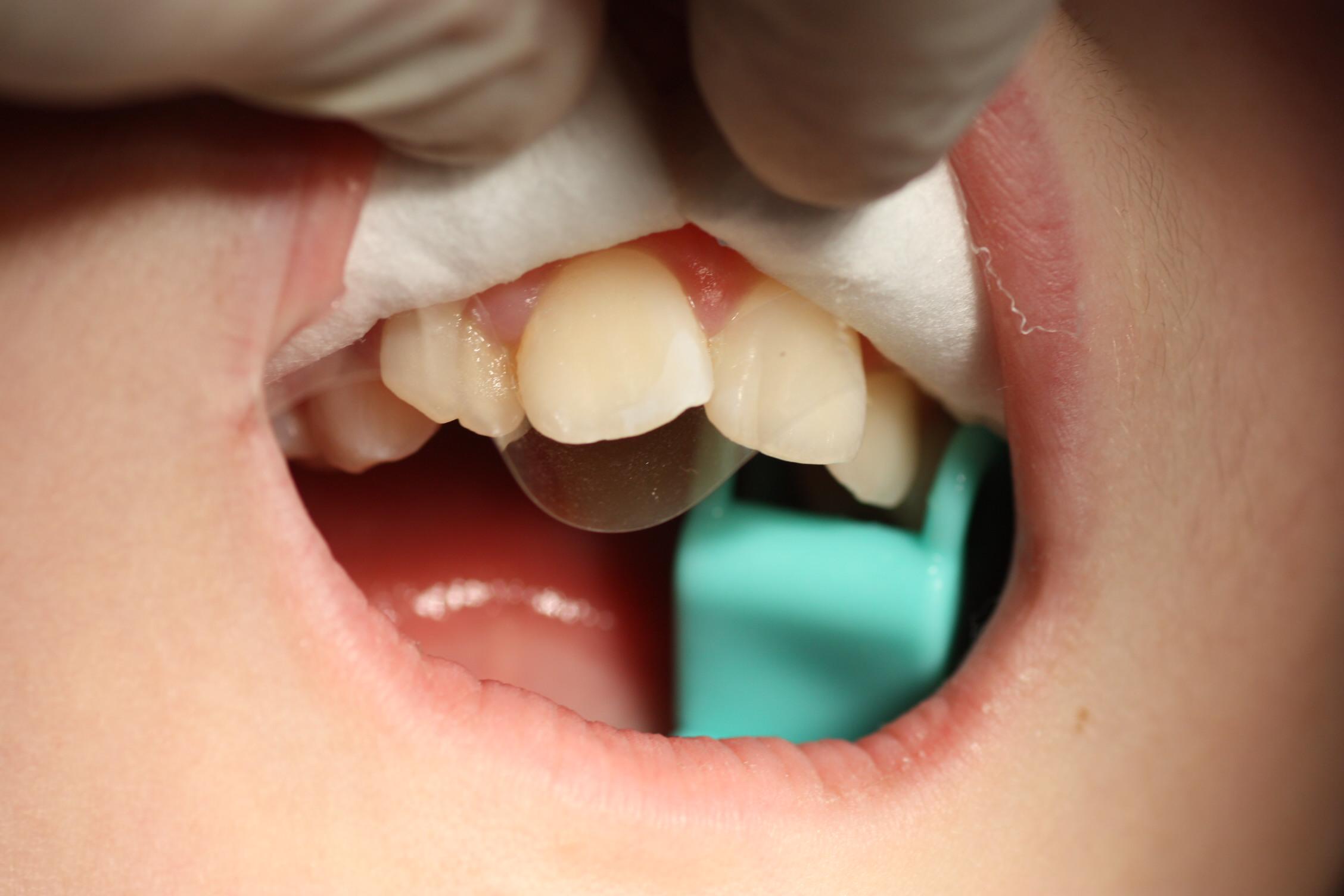 Después del grabado, la superficie tratada adquiere un aspecto de 'tiza', indicativo de que el diente está preparado para continuar, por lo que colocamos una pequeña 'matriz' transparente que lo separa de los dientes contiguos.