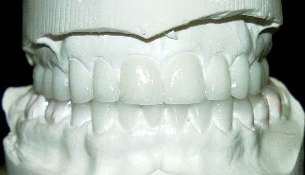 El encerado diagnóstico de carillas dentales permite que el paciente vea cómo serán sus dientes antes de empezar el tratamiento