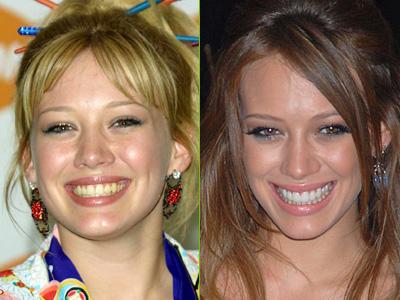 Hilary Swank cambió radicalmente su imagen tras las carillas dentales