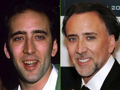 Nicholas Cage, protagonista de películas como 'La Roca', escogió las carillas dentales como método para mejorar su estética facial