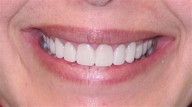 El paciente deberá llevar unos provisionales de carillas cerámicas durante unos días, con una estética adecuada y una función correcta