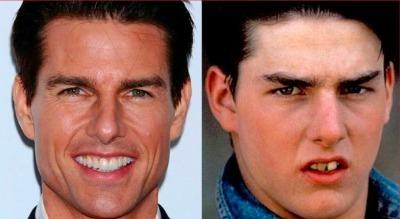 Tom Cruise, uno de los actores más famosos de Hollywood, mejoró radicalmente su sonrisa tras saltar a la fama