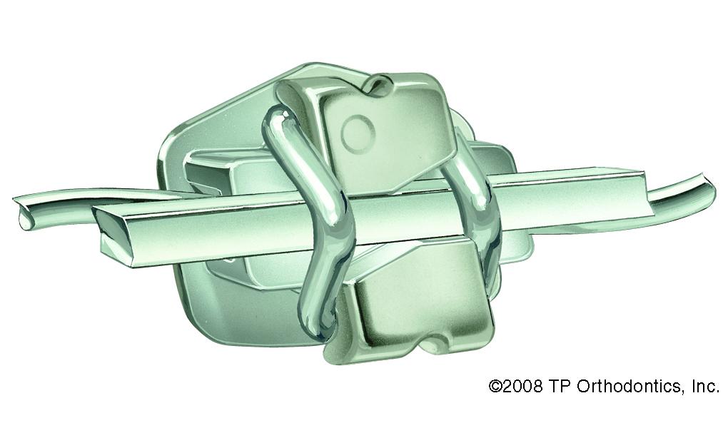 Imagen del bracket con los dos arcos que mejoran la corrección de clase