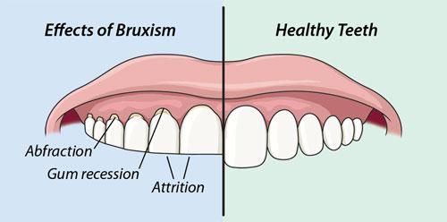 Para evitar erosión, abrasión o atrición, es conveniente utilizar una férula de descarga