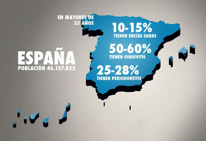 Las encuestas de salud oral en España apuntan un gran riesgo de enfermedades periodontales en pacientes adultos