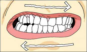 El rechinamiento dental o bruxismo es un hábito nocivo para nuestra salud bucodental