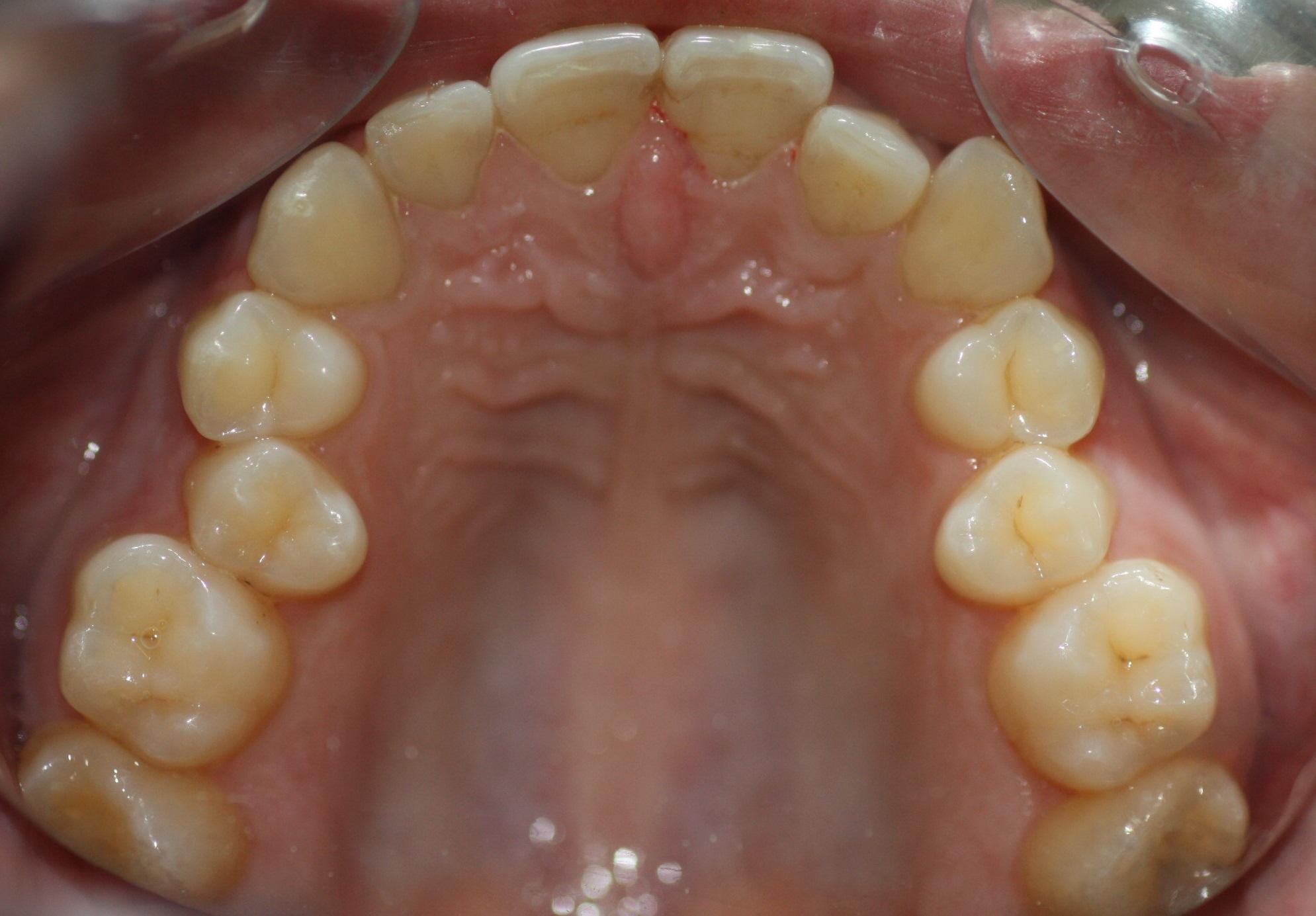 1. Dientes-Arcada-Superior-Ortodoncia-Lingual-Incognito-Murcia