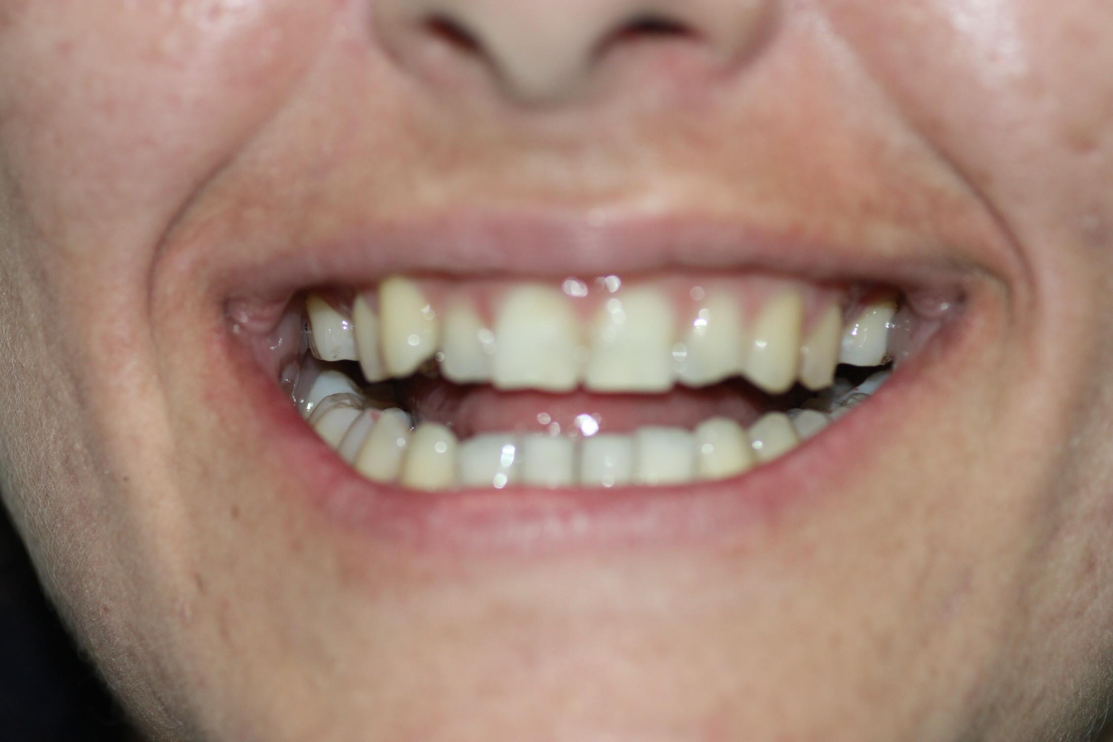 8. Bracket-Lingual-Incognito-3M-Ortodoncia-Murcia-Sonrisa-Invisible-Estetica