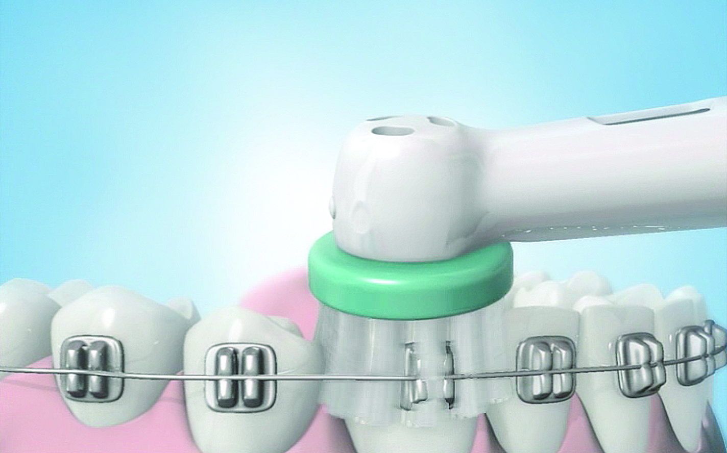 Cabezal-Ortodoncia-Brackets-Cepillo-Electrico-Oral-B