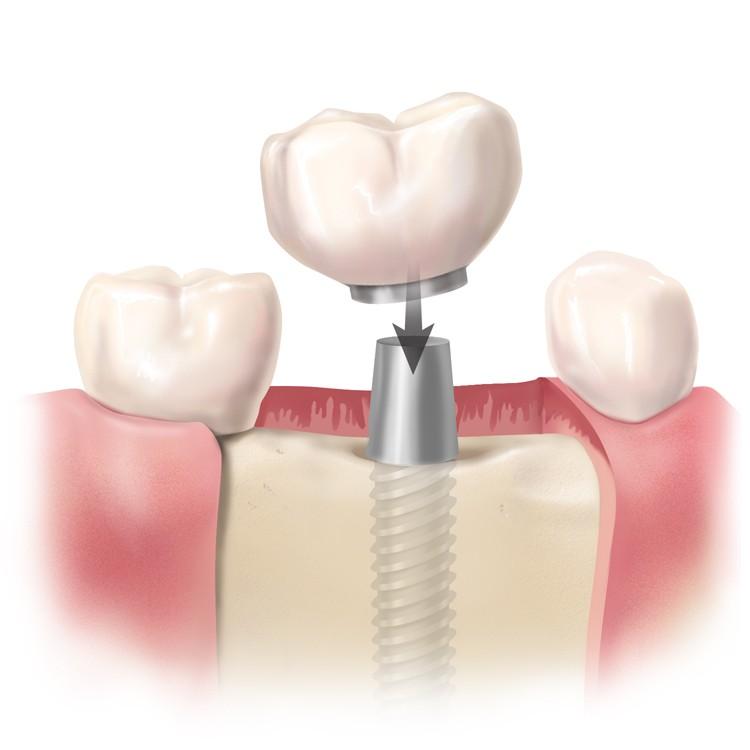 Implante-Dental-Corona-Dentista-Cirujano-Oral-Murcia