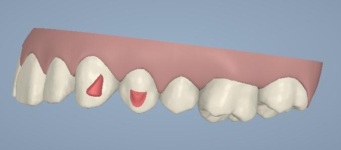 El software 3D permite que el ortodoncista qué dientes necesitarán 'attachments'