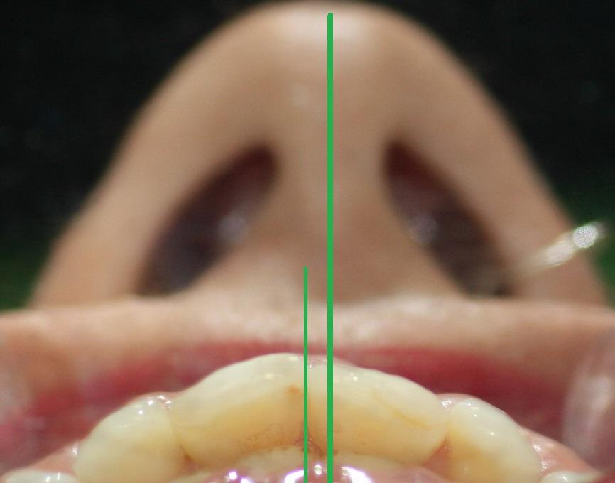 1a. Linea-Media-Dental-Nasal-Facial-Ortodoncia-Nariz-Invisalign