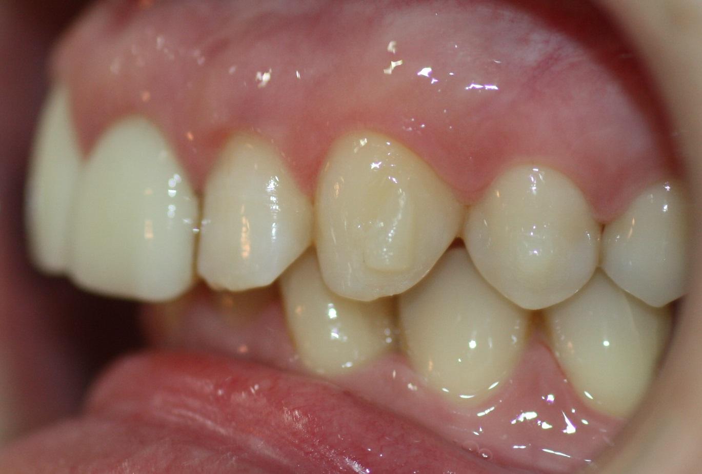 Los botones son casi imperceptibles, ya que el color se asemeja al del diente