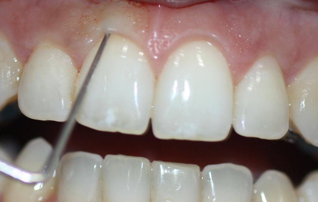 El sondaje por parte de un periodoncista es imprescindible en estos casos