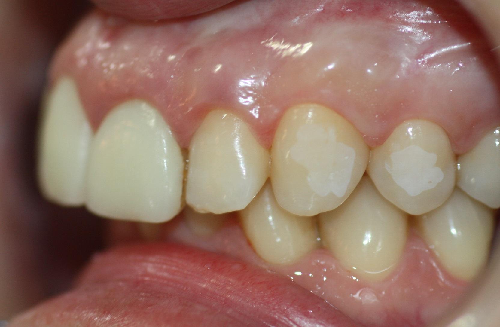 Después de lavar y secar, el diente adquiere un aspecto de 'tiza'