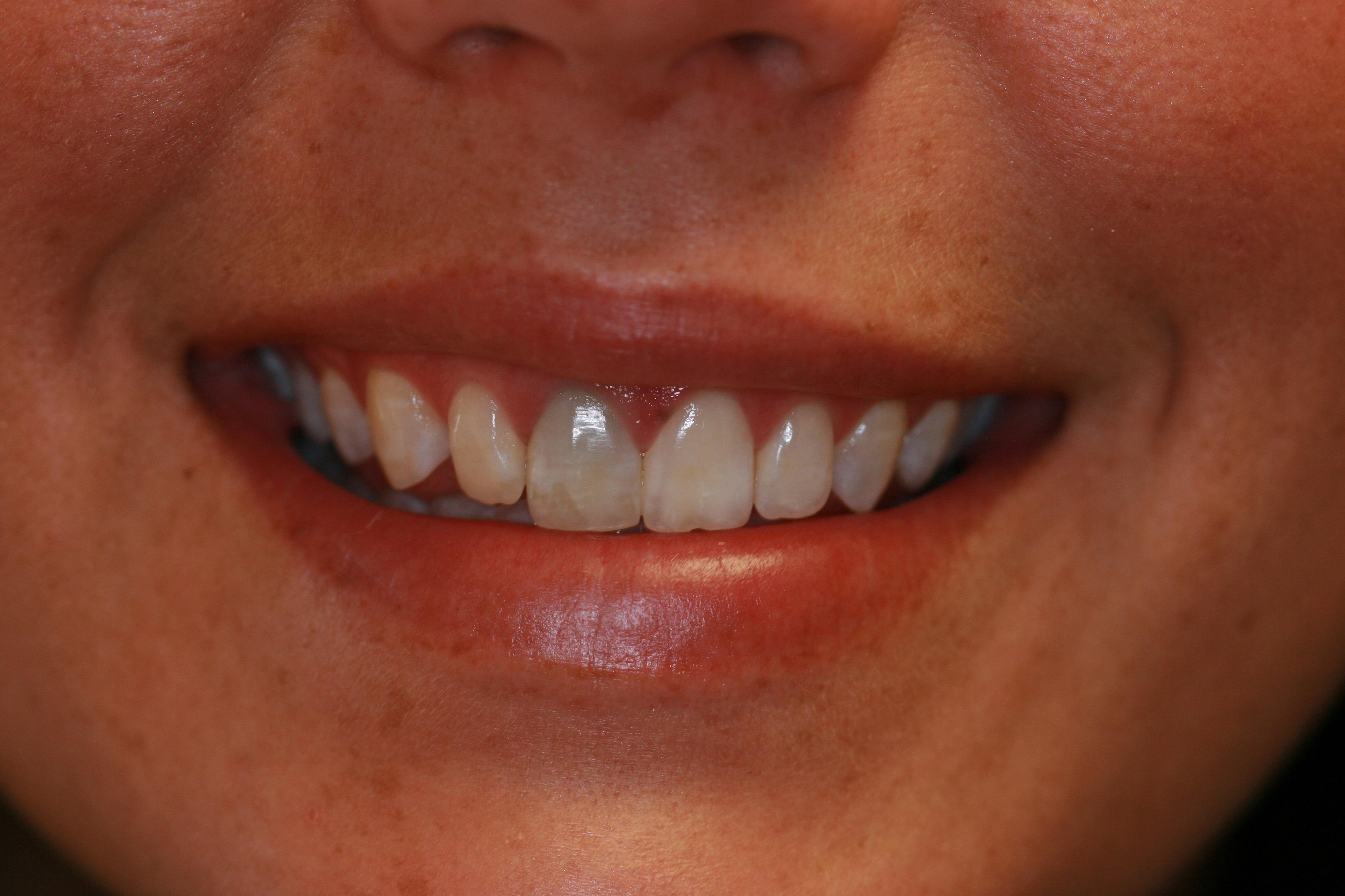 Una tinción dental puede afectar mucho a la estética de nuestra sonrisa, con efectos sociales importantes