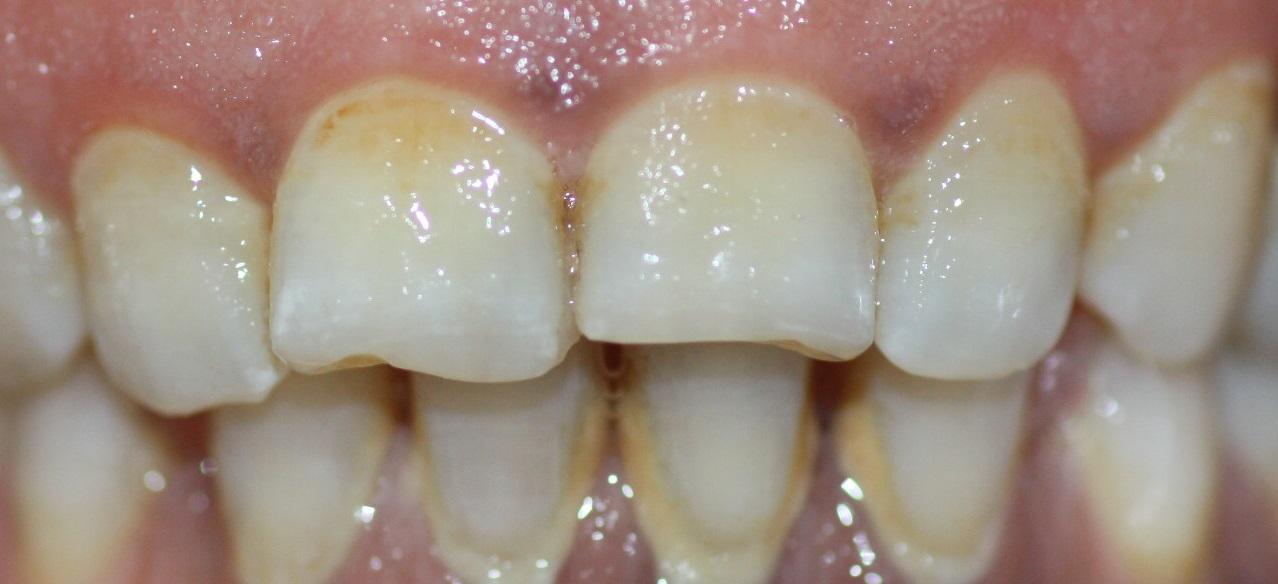 Las manchas blancas, resultado de la acumulación de placa bacteriana, se eliminan fácilmente con cepillado
