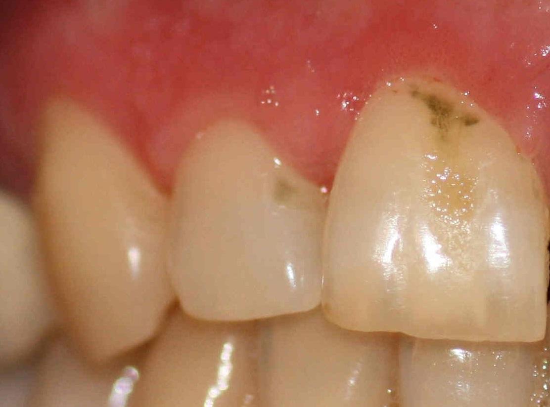Una mancha verde en los dientes se produce por bacterias y hongos como el bacilo Piociánico o el hongo Penicillium Glaucum