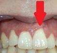 Además de tener un impacto estético para el paciente, esta recesión provocará hipersensibilidad dental