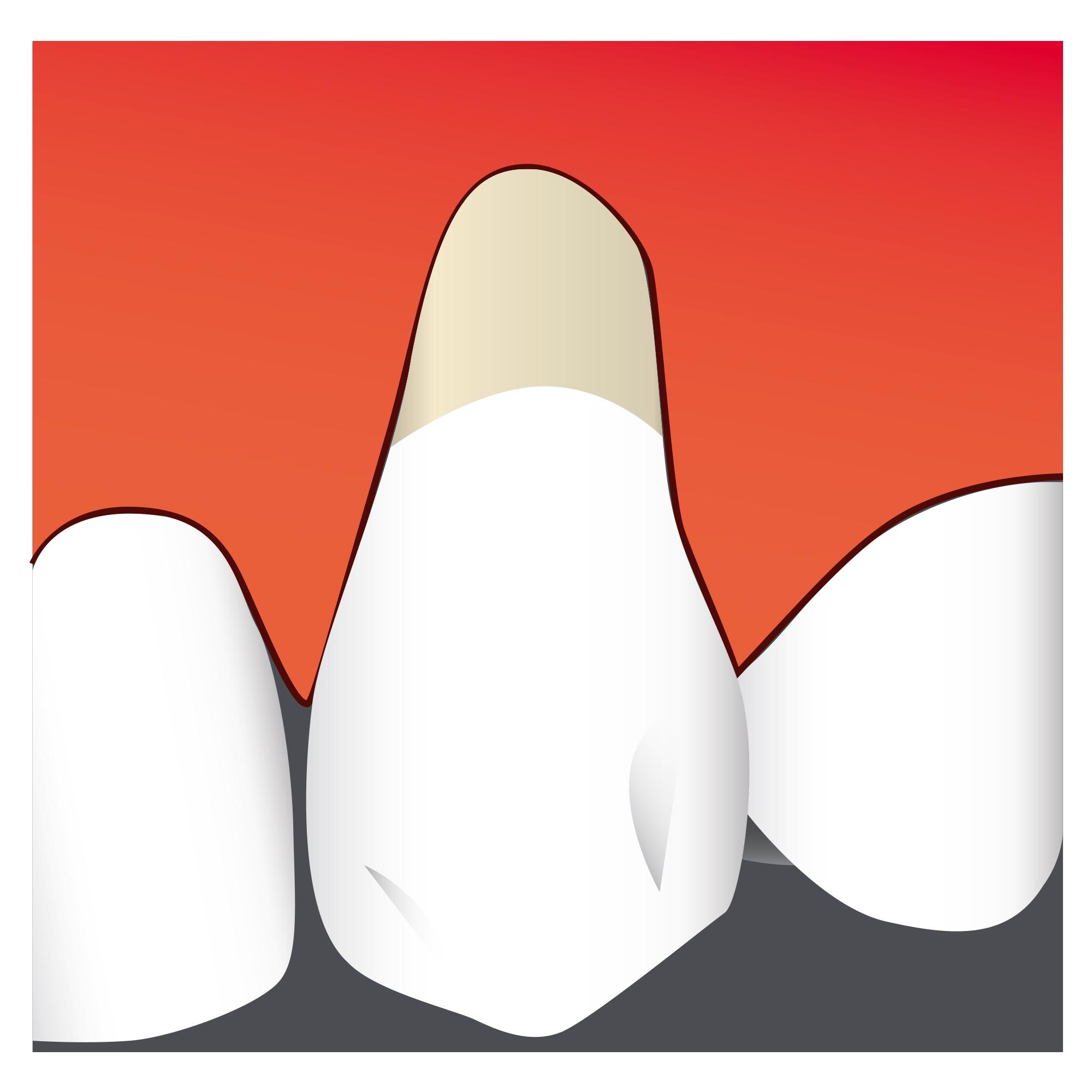 La retracción de la encía produce hipersensibilidad dental y problemas estéticos