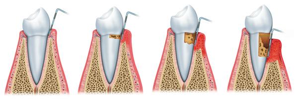 Periodoncia-Artritis-Alzheimer-Diabetes-Murcia-Dentista-Gingivitis