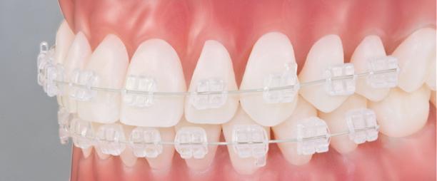 brackets-ceramicos-ortodoncia-murcia