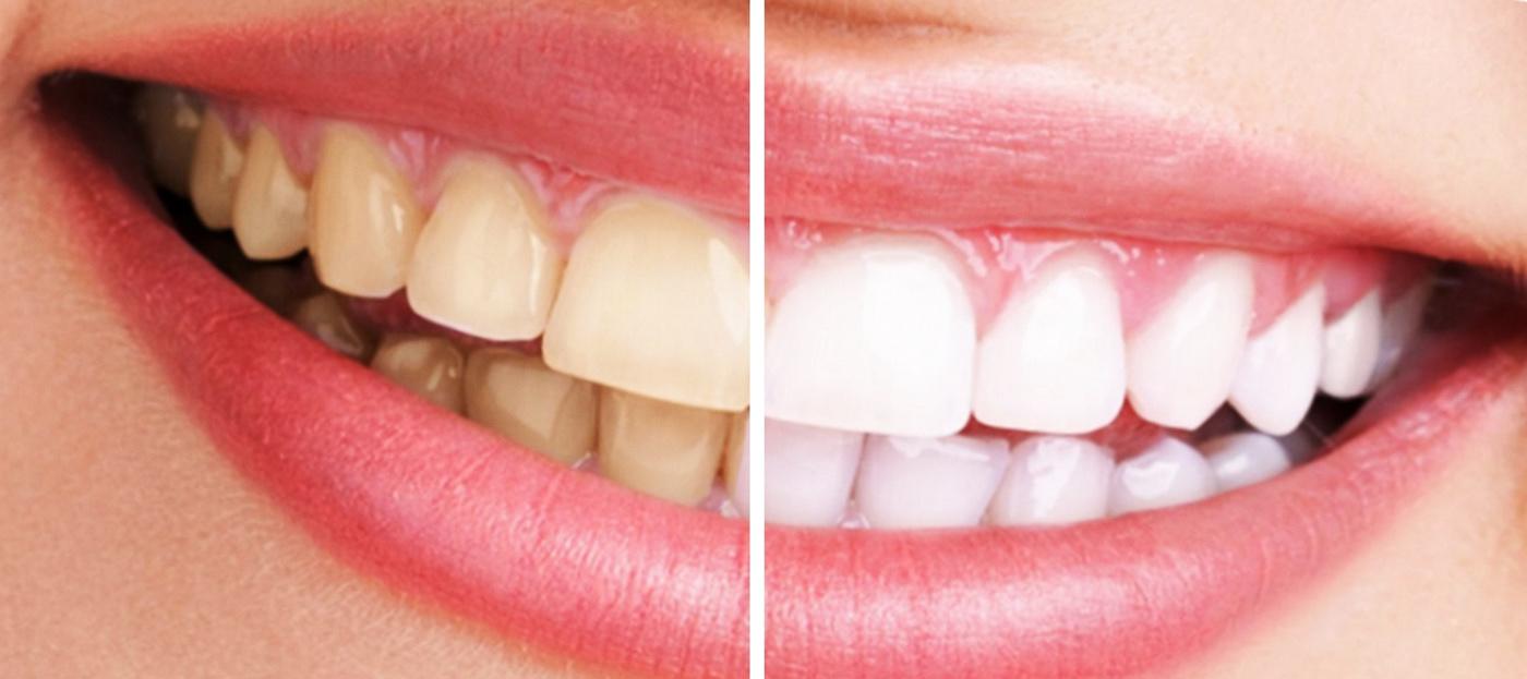 blanqueamiento-dental-en-madrid-cimpla