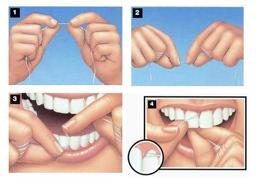 uso-hilo-dental