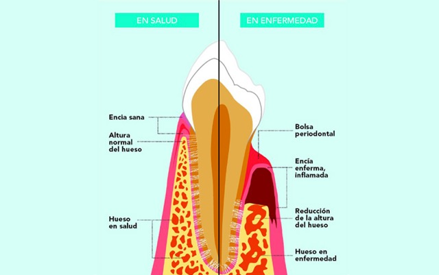 4. Periodonto-Sano-Vs-Periodonto-Enfermo-Clinica-Dental-Murcia
